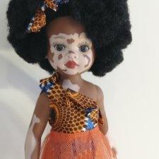 Африканка с витилиго, Ndanaka