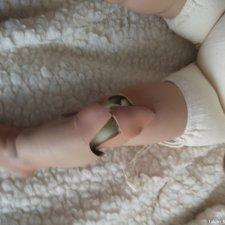 Лечение разбитой фарфорочки